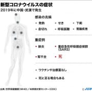 「新型コロナウイルスによる肺炎の感染を防ぐために」12/01(火) 23:52 | CLASSY.四日市店のお得なニュース